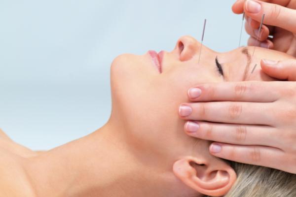 akupunktur yapımı