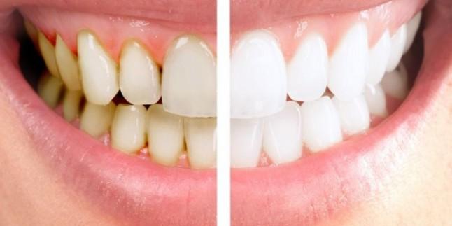 Diş Taşı Nasıl Tedavi Edilir?